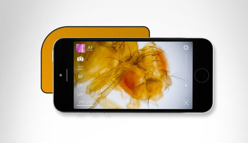 Upeek: a Microscope That Fits in the Palm of Your Hand